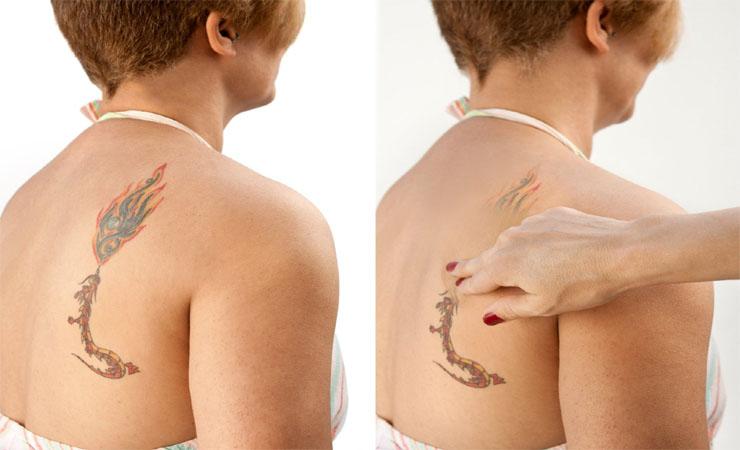 base para cubrir tatuajes
