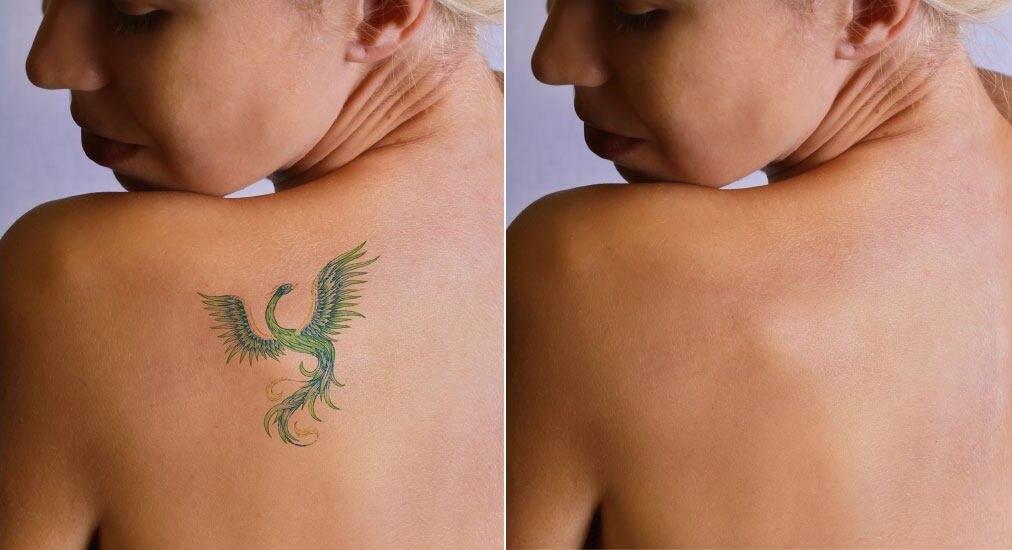 tapar tatuaje con maquillaje
