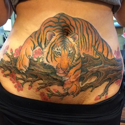 tatuaje en estrias antes y despues