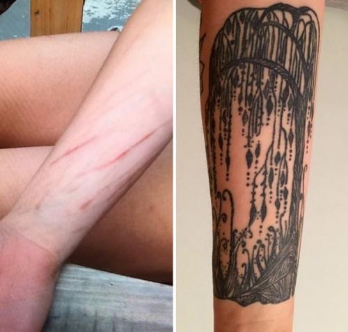 tatuaje para tapar cicatriz grande en el brazo